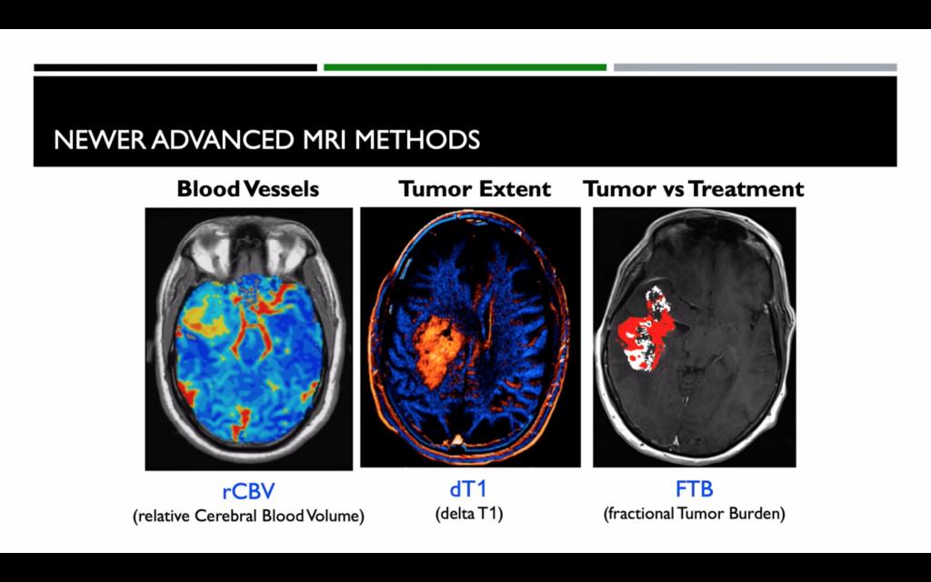 Nuove tecniche di Neuro-Imaging