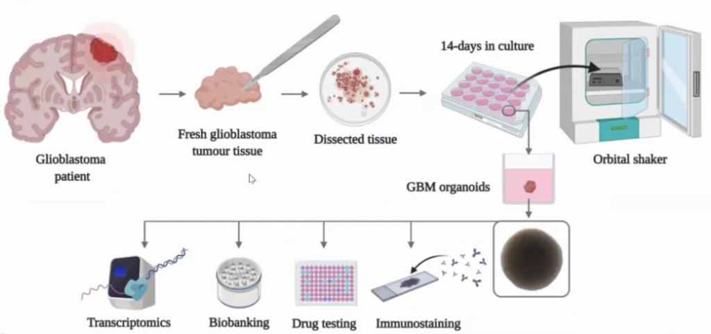 Organoidi, dal glioblastoma del paziente alla cultura cellulare per una medicina personalizzata.
